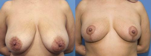 Breast Reduction Gallery - Patient 58179136 - Image 1