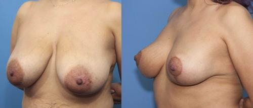 Breast Reduction Gallery - Patient 58179136 - Image 5