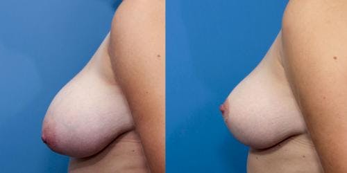 Breast Lift Gallery - Patient 58179137 - Image 5