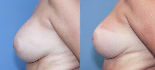 Breast Lift with Augmentation Gallery - Patient 58179138 - Image 2