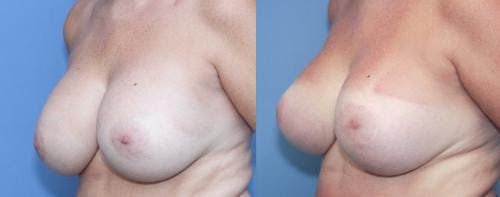 Breast Lift with Augmentation Gallery - Patient 58179138 - Image 3