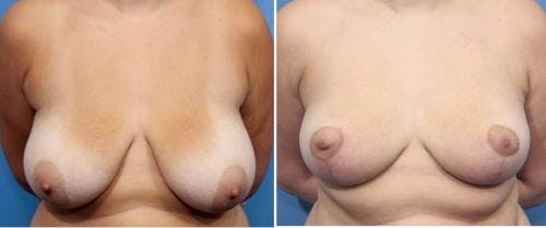 Breast Reduction Gallery - Patient 58179140 - Image 1