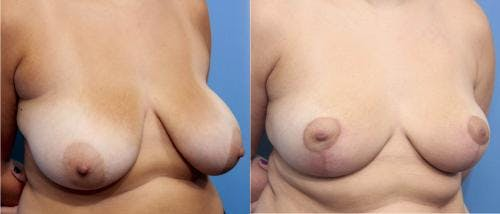 Breast Reduction Gallery - Patient 58179140 - Image 2