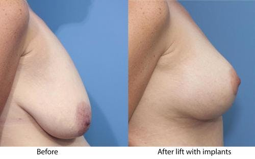 Breast Lift with Augmentation Gallery - Patient 58179143 - Image 2