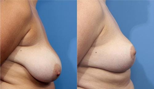 Breast Reduction Gallery - Patient 58179140 - Image 3