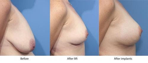 Breast Lift with Augmentation Gallery - Patient 58179143 - Image 3