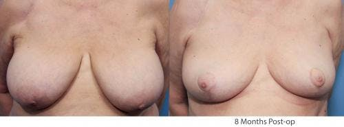 Breast Lift Gallery - Patient 58179141 - Image 1