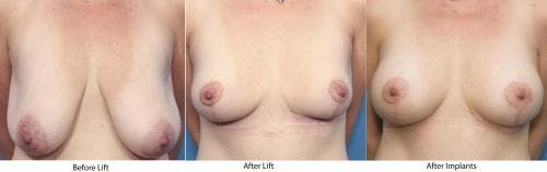Breast Lift with Augmentation Gallery - Patient 58179143 - Image 4