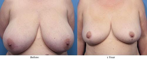 Breast Reduction Gallery - Patient 58179142 - Image 1