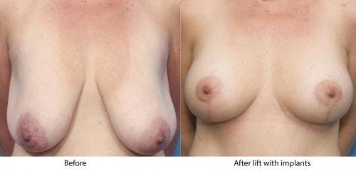 Breast Lift with Augmentation Gallery - Patient 58179143 - Image 1