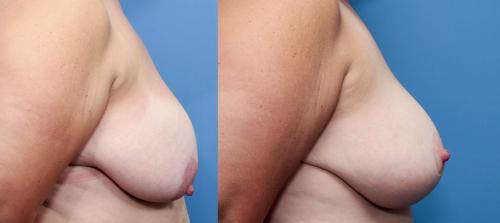 Breast Lift Gallery - Patient 58179144 - Image 2