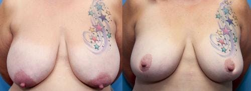 Breast Lift Gallery - Patient 58179144 - Image 1