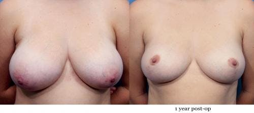 Breast Reduction Gallery - Patient 58179148 - Image 1