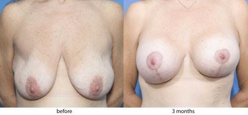 Breast Lift with Augmentation Gallery - Patient 58179146 - Image 1