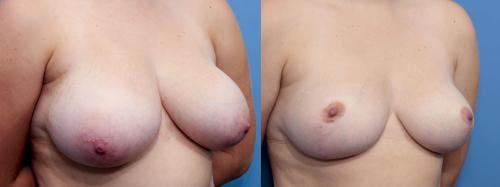 Breast Reduction Gallery - Patient 58179148 - Image 2