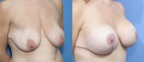 Breast Lift with Augmentation Gallery - Patient 58179146 - Image 2