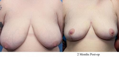 Breast Lift Gallery - Patient 58179145 - Image 1