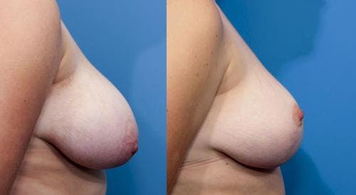 Breast Reduction Gallery - Patient 58179148 - Image 3