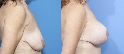 Breast Lift with Augmentation Gallery - Patient 58179146 - Image 3