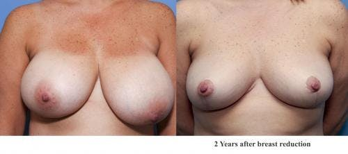 Breast Lift Gallery - Patient 58179147 - Image 1