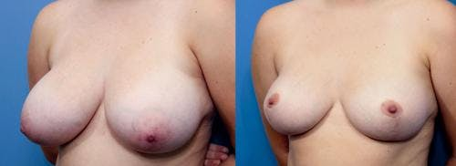 Breast Reduction Gallery - Patient 58179148 - Image 4