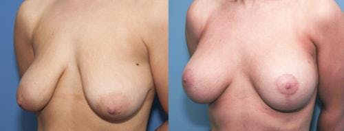 Breast Lift with Augmentation Gallery - Patient 58179149 - Image 1
