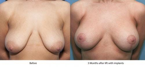 Breast Lift with Augmentation Gallery - Patient 58179149 - Image 2