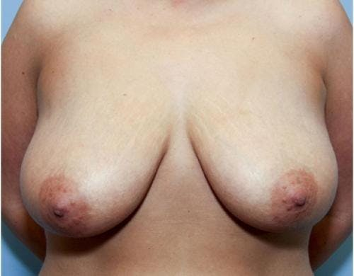 Breast Lift Gallery - Patient 58179155 - Image 1