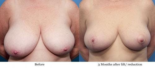 Breast Reduction Gallery - Patient 58179150 - Image 1