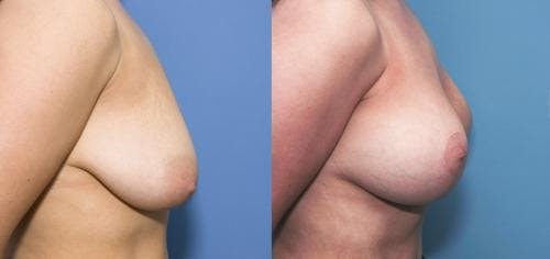 Breast Lift with Augmentation Gallery - Patient 58179149 - Image 3