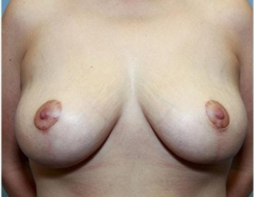 Breast Lift Gallery - Patient 58179155 - Image 2