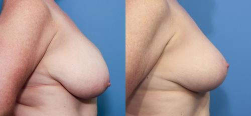 Breast Reduction Gallery - Patient 58179150 - Image 2