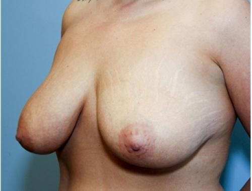 Breast Lift Gallery - Patient 58179155 - Image 3