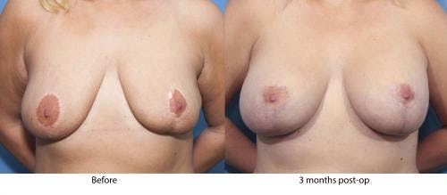 Breast Lift with Augmentation Gallery - Patient 58179153 - Image 1
