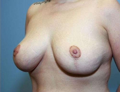 Breast Lift Gallery - Patient 58179155 - Image 4