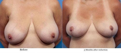 Breast Reduction Gallery - Patient 58179152 - Image 1