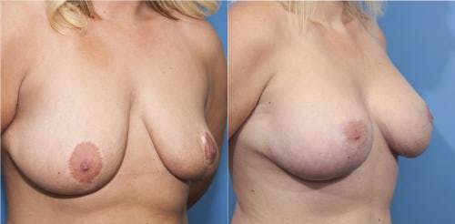Breast Lift with Augmentation Gallery - Patient 58179153 - Image 2