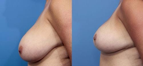 Breast Reduction Gallery - Patient 58179152 - Image 2