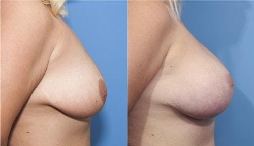 Breast Lift with Augmentation Gallery - Patient 58179153 - Image 3