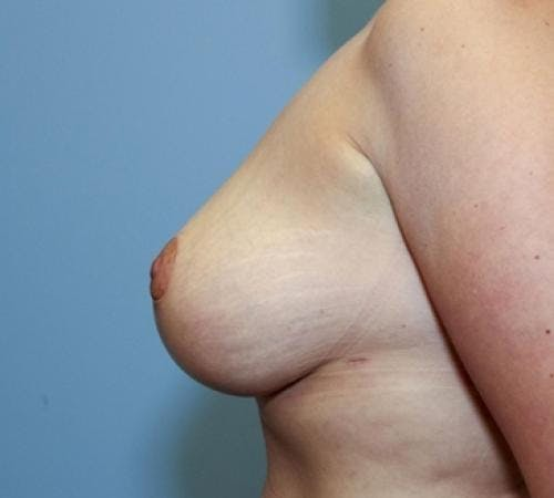 Breast Lift Gallery - Patient 58179155 - Image 6