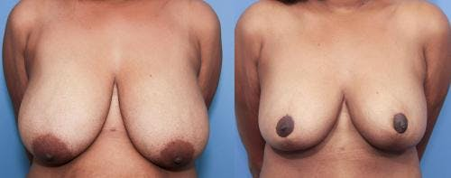 Breast Reduction Gallery - Patient 58179156 - Image 1