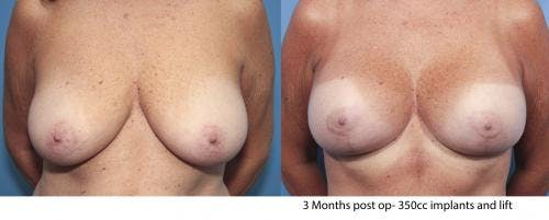 Breast Lift with Augmentation Gallery - Patient 58179158 - Image 1
