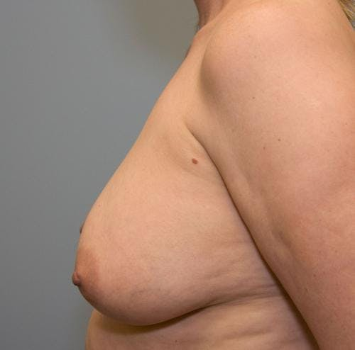Breast Lift Gallery - Patient 58179159 - Image 3