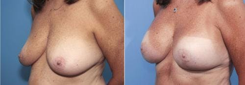 Breast Lift with Augmentation Gallery - Patient 58179158 - Image 2