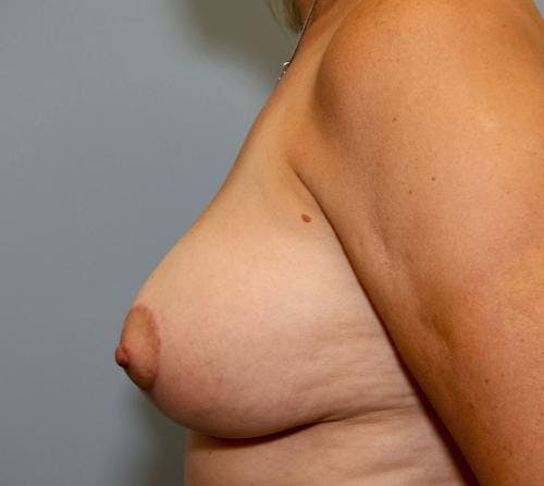 Breast Lift Gallery - Patient 58179159 - Image 4