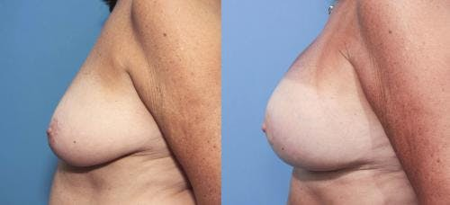 Breast Lift with Augmentation Gallery - Patient 58179158 - Image 3