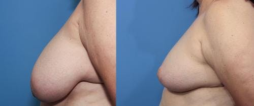 Breast Reduction Gallery - Patient 58179157 - Image 2
