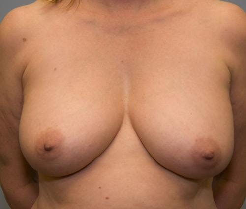 Breast Lift Gallery - Patient 58179159 - Image 1