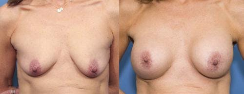 Breast Lift with Augmentation Gallery - Patient 58179161 - Image 1