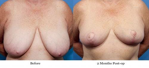 Breast Reduction Gallery - Patient 58179160 - Image 1